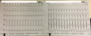 EKG of the week #5