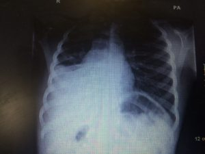 Initial chest x-ray